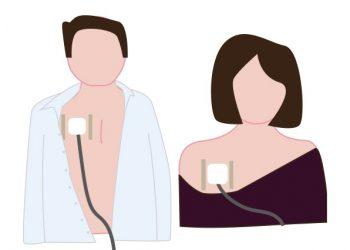 Problématique illustrée des vêtements non adaptés au cancer avec une chambre implantable